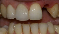 Implant Supported Denture Before