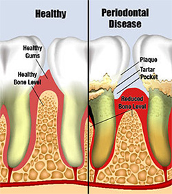 Periodontal (gum) diseases